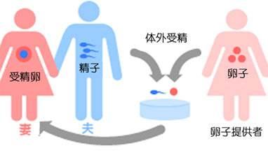借卵试管婴儿和捐卵试管的区别吗?